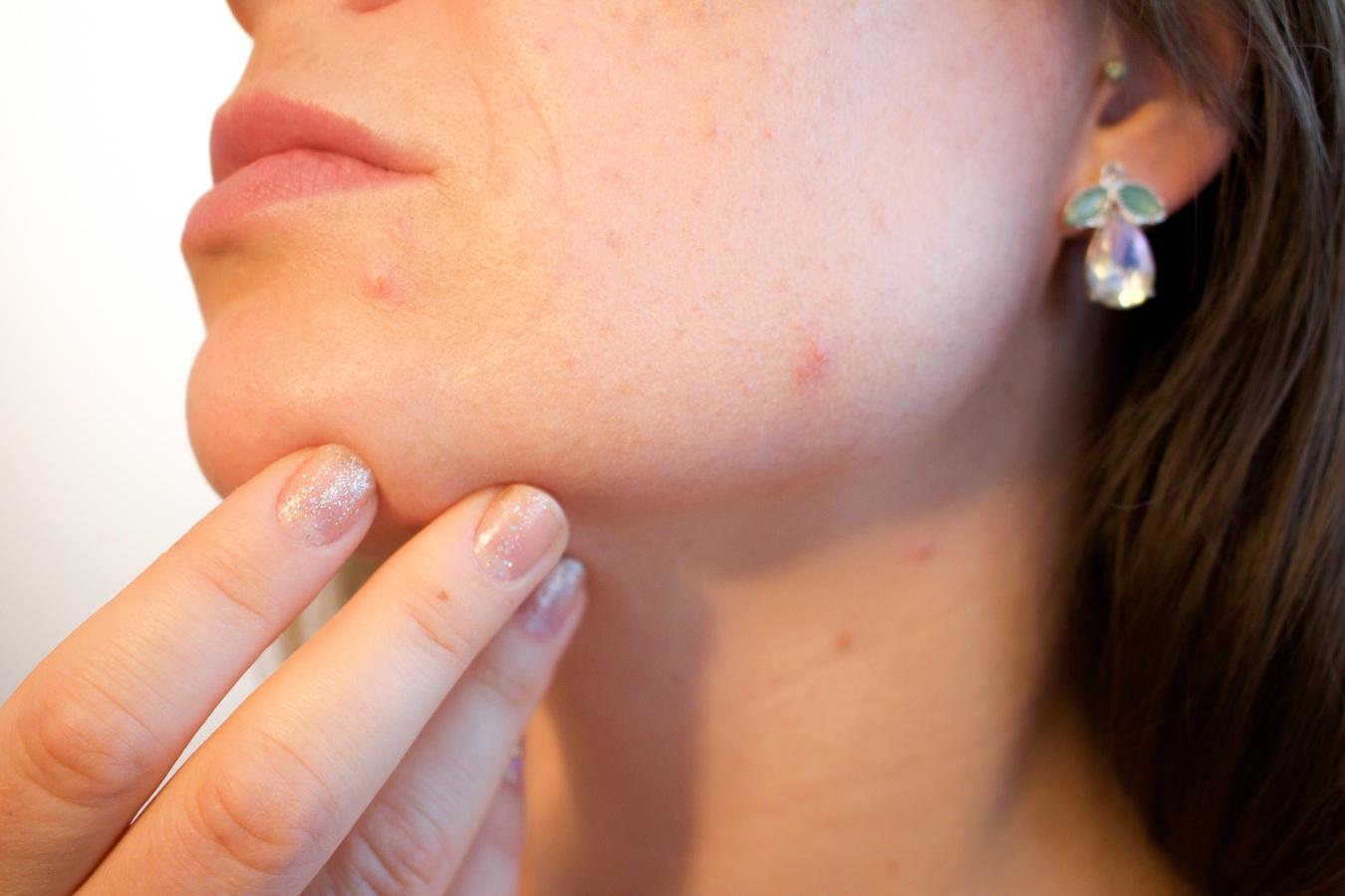 Tés e infusiones contra el dolor de garganta